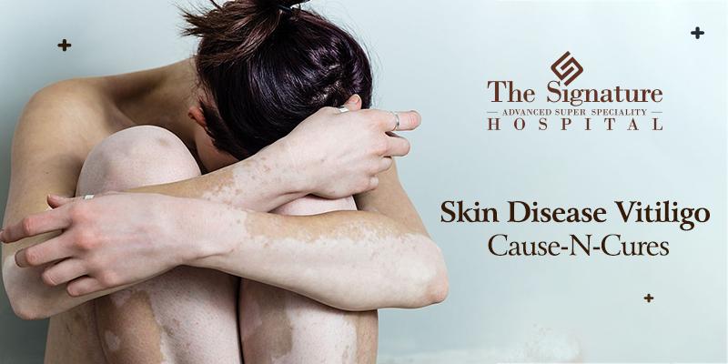 Skin Disease Vitiligo: Cause-N-Cures